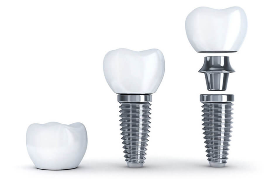 Dental Implants Myths vs. Facts: What You Need to Know