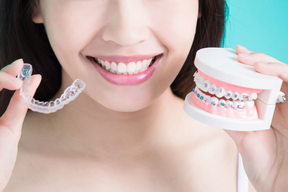4 Benefits of Invisalign Over Traditional Braces