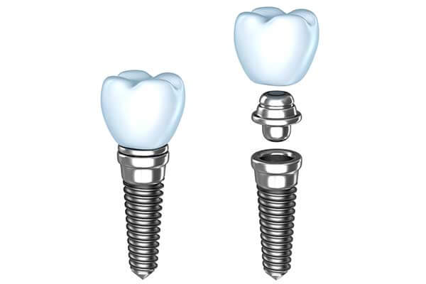 Single Tooth Dental Implants in Waltham
