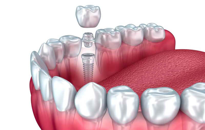 Traditional Dental Implants in Waltham