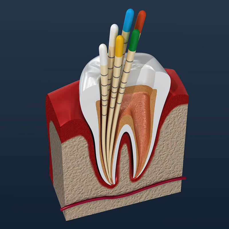 Root Canal Treatment in Waltham, MA