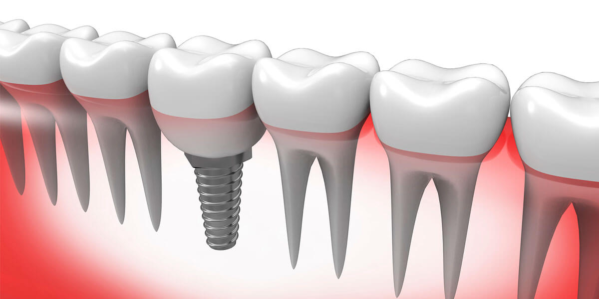 Single Dental Implants in Waltham, MA